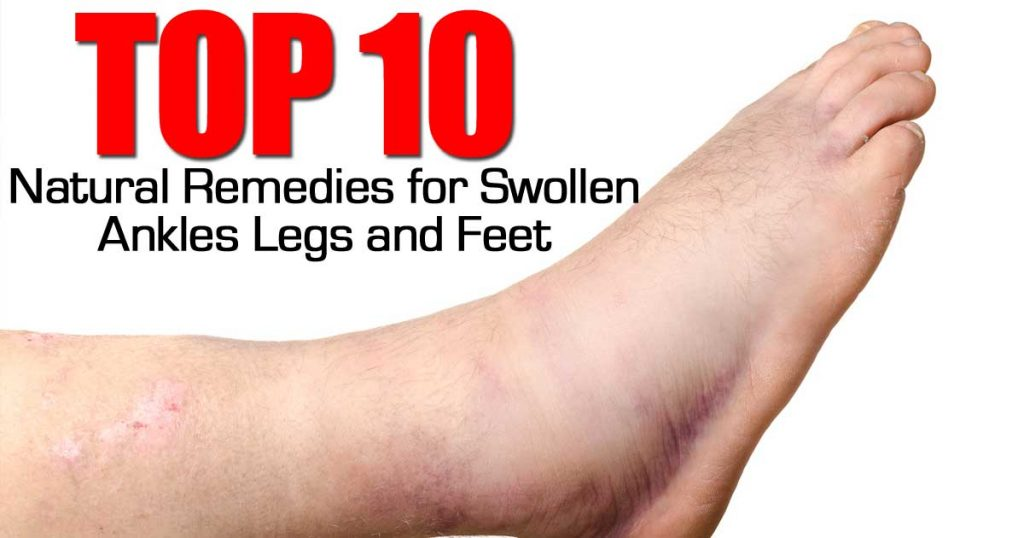 natural remedies for swollen feet
