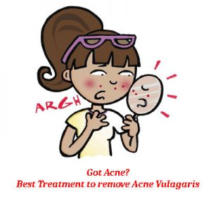 How to get rid of Acne Vulagaris?