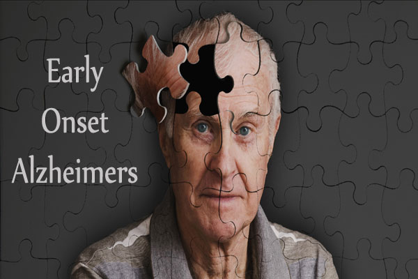 alzheimers image