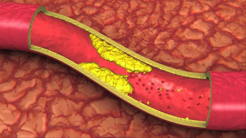 atherosclerosis-blockage