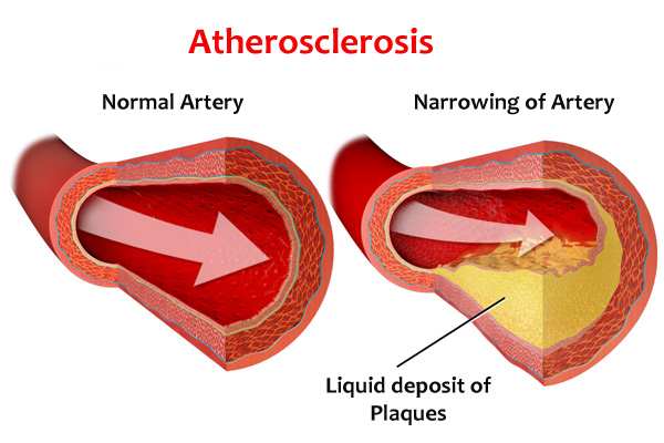 aortic atherosclerosis symptoms