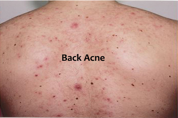 Best Natural Back Acne Treatment