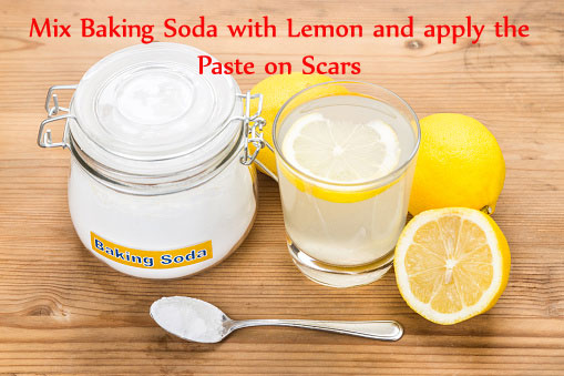 Baking Powder & Lemon for Scars