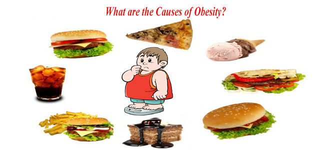 Causes for Obesity