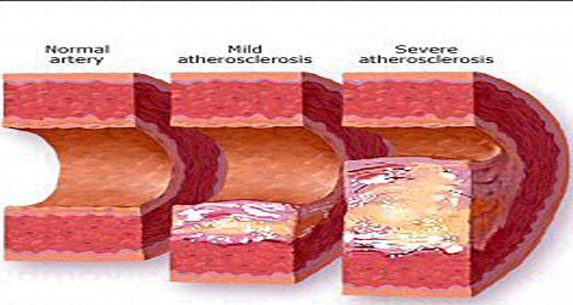 Atherosclerosis Meaning