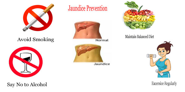 jaundice prevention