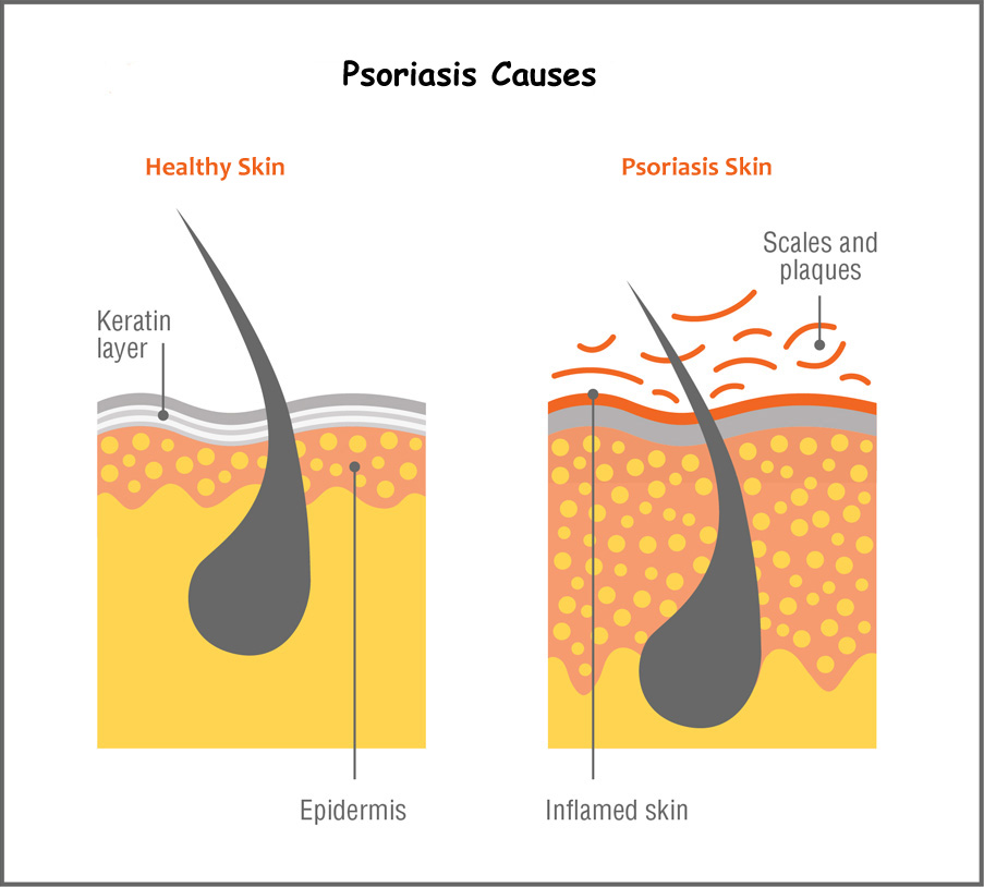 what is the cause of psoriasis