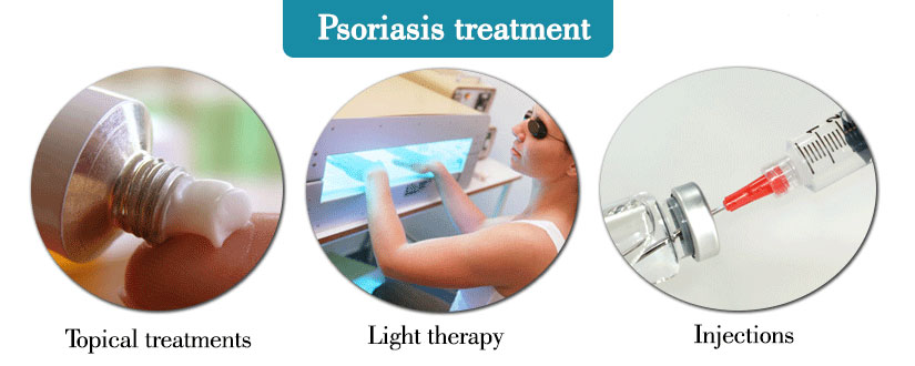 psoriasis-treatment