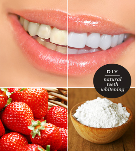 DIY teeth whiteners