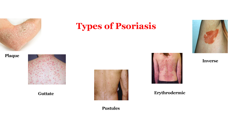 Image result for Most Common Types of Psoriasis