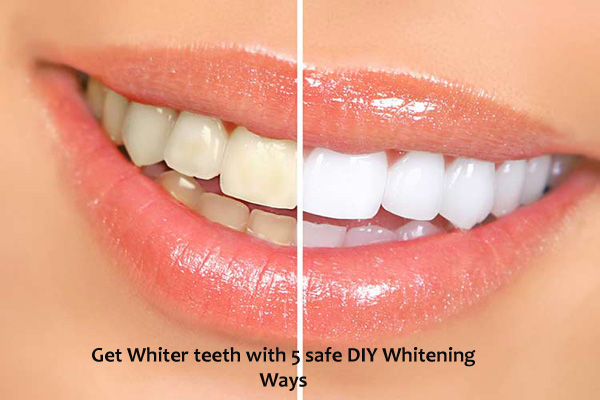 DIY teeth whitening strips