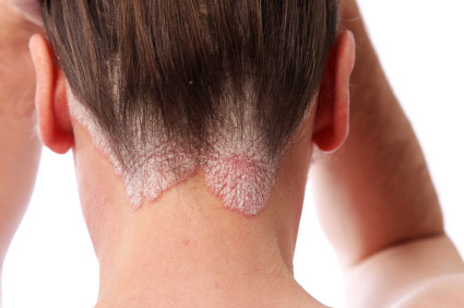 What does Psoriasis look like, Scalp Psoriasis Pictures