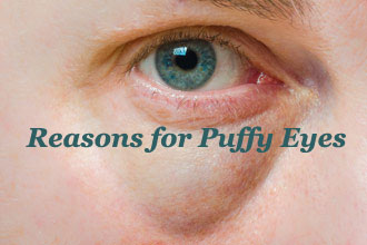 Reasons for Puffy Eyes