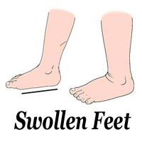 Natural Remedies for Swollen Feet | Get 10 Best & Natural Herbal Home Remedies for Swelling Ankle & Feet