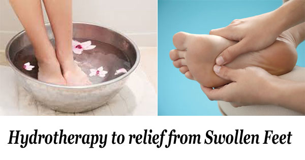 therapy for swollen foot