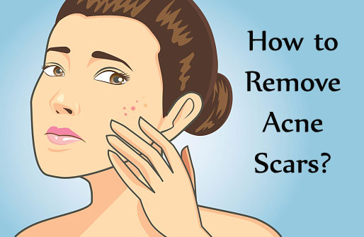 acne scars images