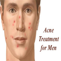 Acne Treatment for Men – Know How to Get Rid of Men's Pimples