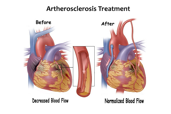 artherosclerosis treatment and prevention