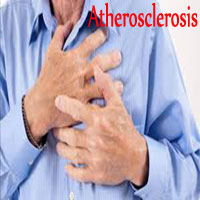 Atherosclerosis | Causes, Symptoms & Prevention