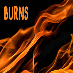 What do you put on burns