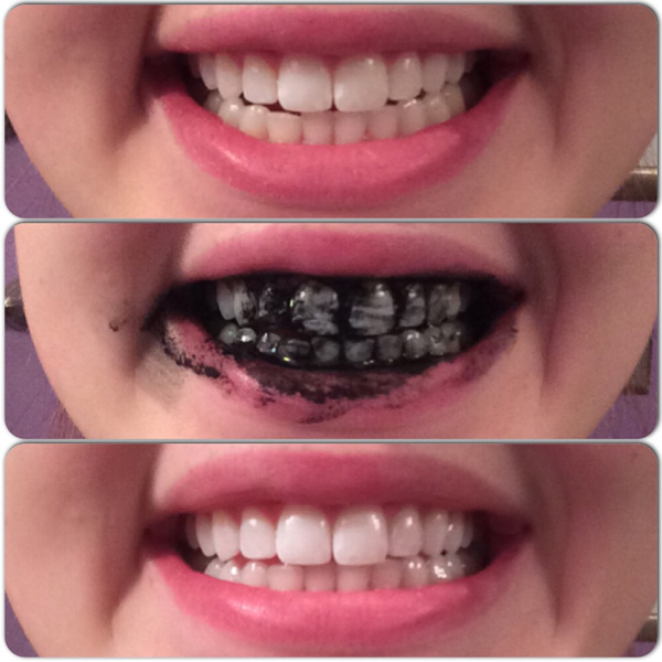 Charcoal on Teeth