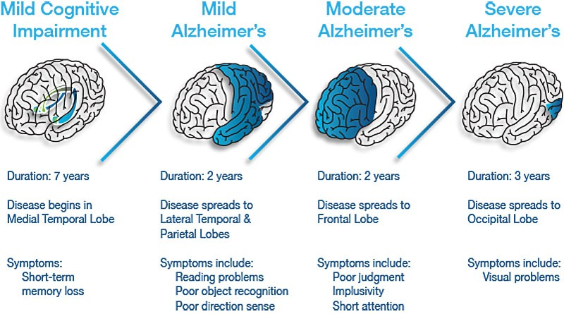 a survey of features and stages of alzheimers disease Medscape alzheimer disease diagnosis and treatment survey five million americans and nearly 47 million people worldwide are estimated to suffer from alzheimer disease (ad) or a related form of.