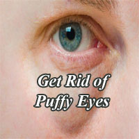 Get Rid of Puffy Eyes – 9 Simple Home Remedies to Reduce Under Eye Bags