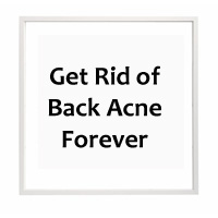 How to cure Acne on Back – Fastest ways to Get rid of Back Acne