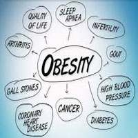 Obesity, Childhood Obesity | Causes, Symptoms, Management & Prevention