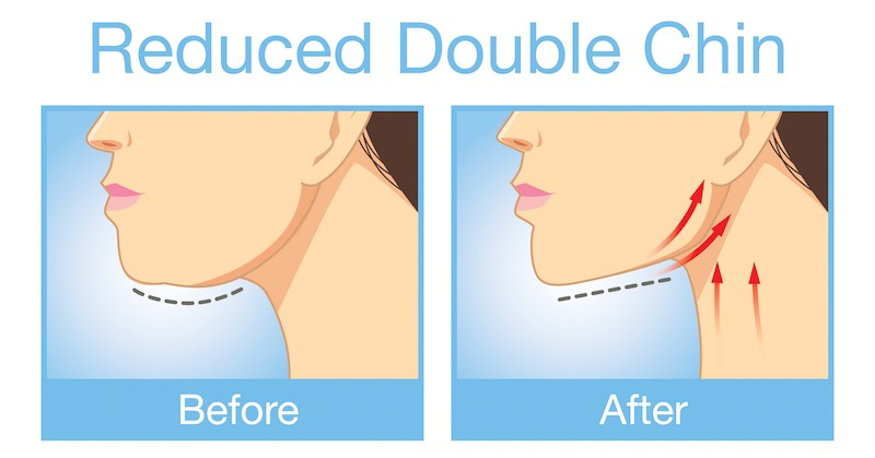 Reduced Double Chin Image