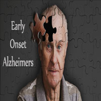 10 Early Onset Alzheimers Signs | Know Stages of Alzheimers