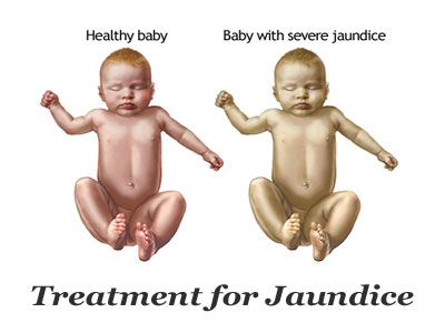 treatment for jaundice