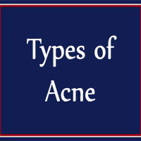 Know Acne Types | Home Remedies for each Type of Acne