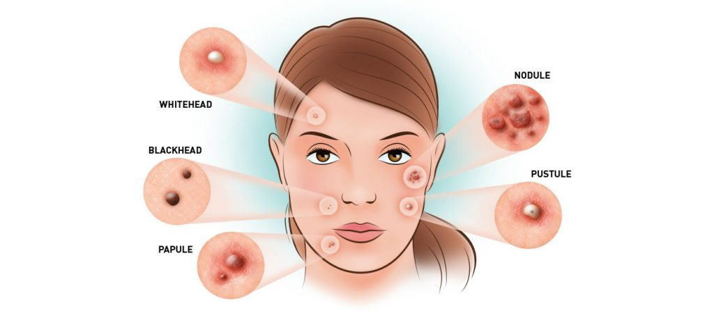 Types of Acne with Pictures
