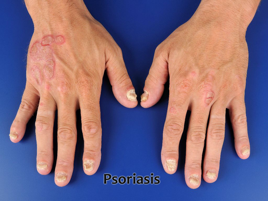 How to cure Psoriasis