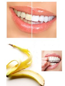 Get White teeth with banana peel