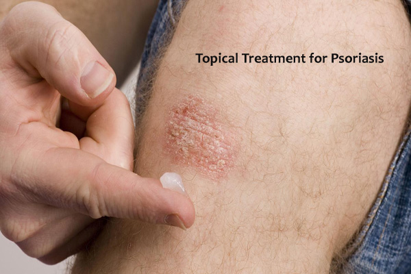 best psoriasis home treatment