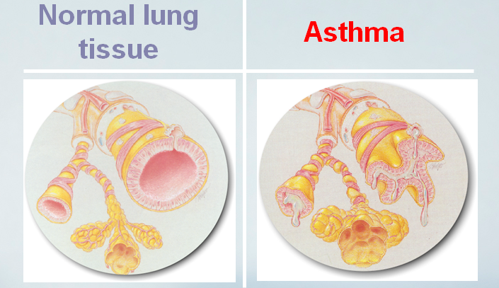 About Asthma Disease