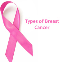 Types of Breast Cancer – Different Breast Cancer Types