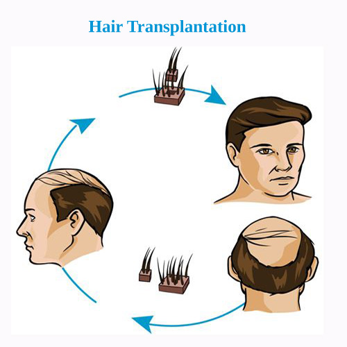 alopecia treatment for women