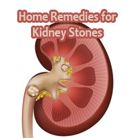 Home Remedies for Kidney Stones – How to get rid of Kidney Stones Naturally