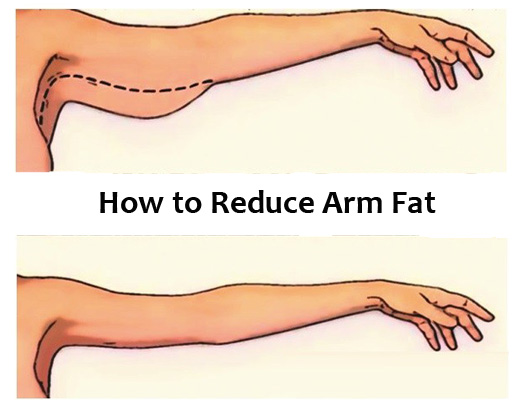 How to reduce Arm fat