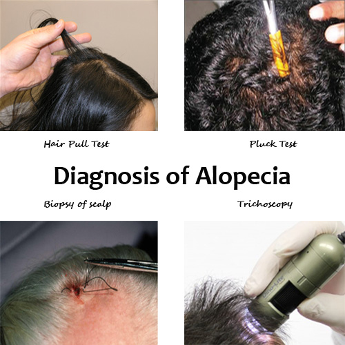 How to treat Alopecia