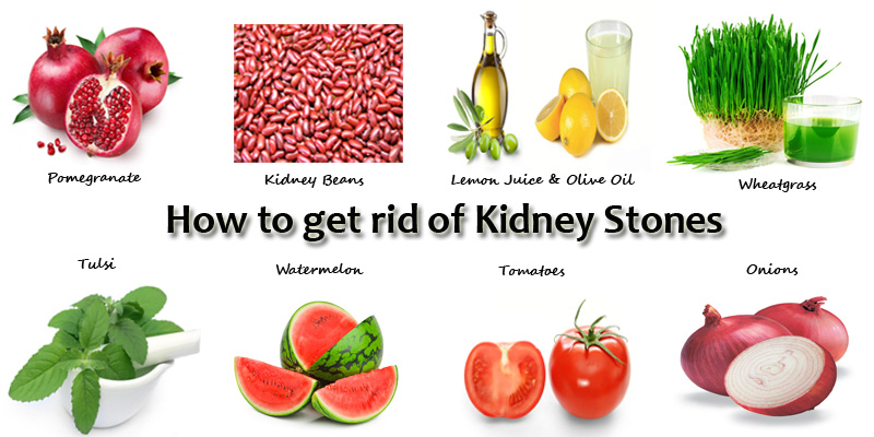 12 home remedies for kidney stones | how to cure kidney stones, Human Body