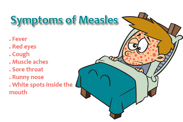 the signs symptoms and treatment of measles Rubella (german measles) - including symptoms, treatment and prevention rubella (german measles) is an infection caused by the rubella virus rubella is a notifiable condition 1.
