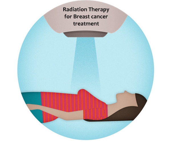 radiation therapy-image