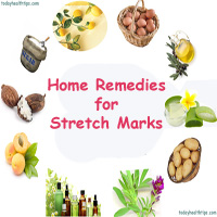 Home Remedies for Stretch Marks | Pregnancy Striae removal tips