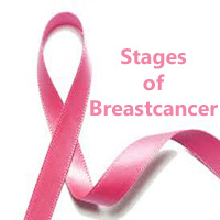 Stages of Breast Cancer | Know the Survival reate in each stage of Breast Cancer