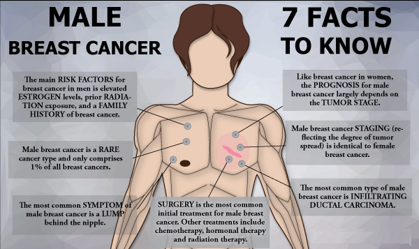 Breast Cancer in Men: Symptoms, Causes, Treatments