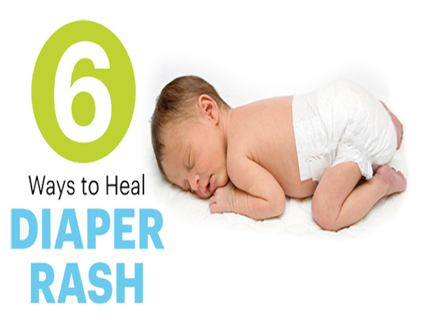 Diaper rash treatment at home | Home Remedies for Infant & Adult Baby rashes